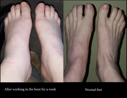 feet-comparison